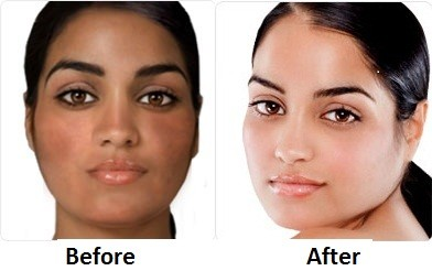 Glutathione Injection Before and After http://www.ebay.co.uk/itm/IvoryCaps-Skin-Whitening-Lightening-Pill-Cream-Glutathione-Pills-Vitamin-C-Ivory-/110770249966