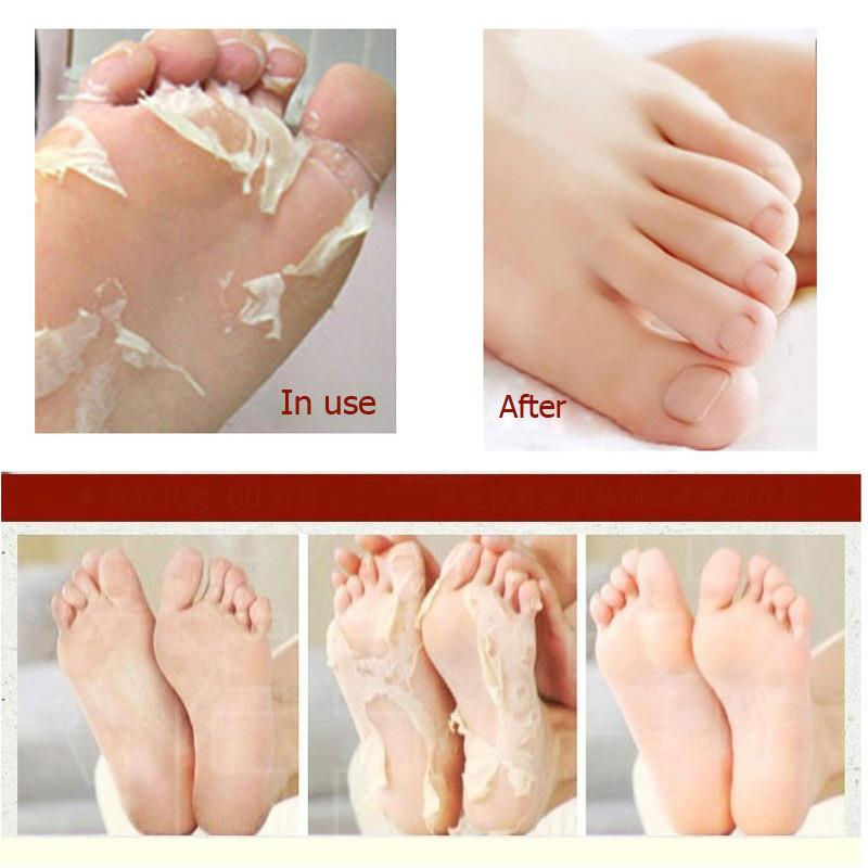 how to make feet peel