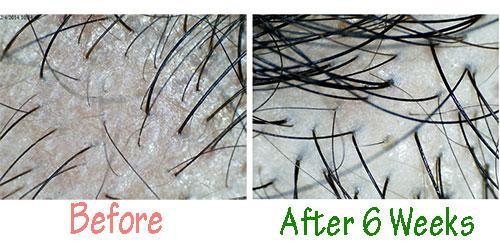 Best Natural Set Kowbu Shampoo Hair Tonic Stimulation Hair Loss Regrowth + Serum 768261691 o