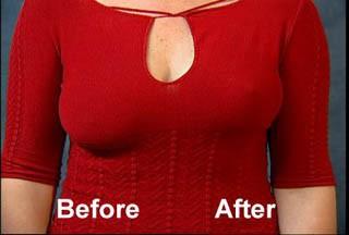 Breast Quiz: Are My Breasts Normal? Sagging, Nipples, Bras ...
