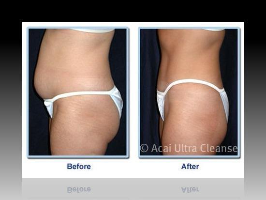 Таблетки для похудения Strong Diet Pills Fat Burner Binder Detox Cleanse Weight Loss Slimming Tablets в интернет магазине Ru-eba