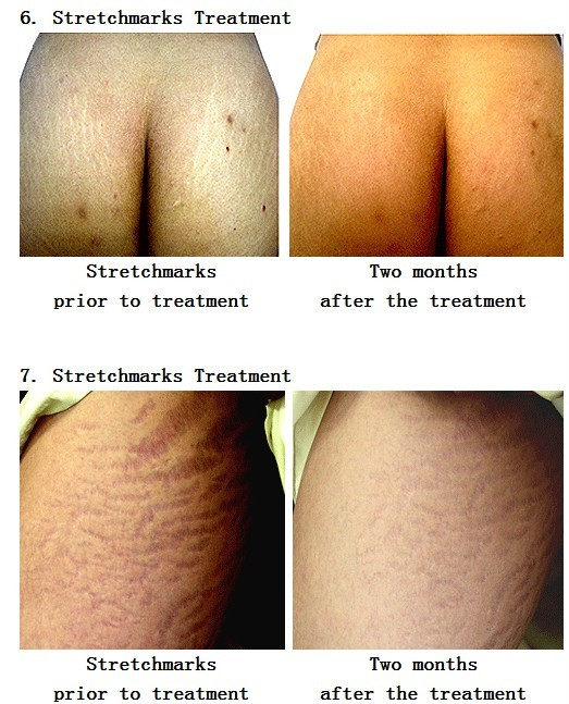 540 Titanium Microneedle Skin Meso Roller Anti-aging,Hair ...