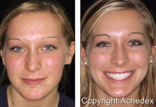 acne klar skin pillen gepunktet scars stark cleanser detox. Black Bedroom Furniture Sets. Home Design Ideas