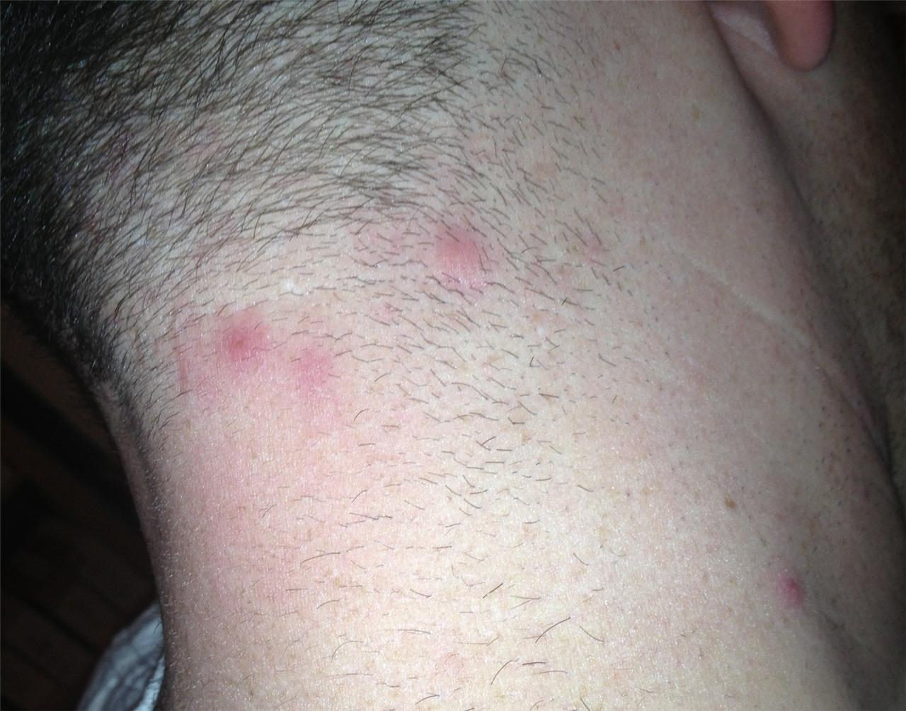 ingrown hair on back of head are these ingrowns