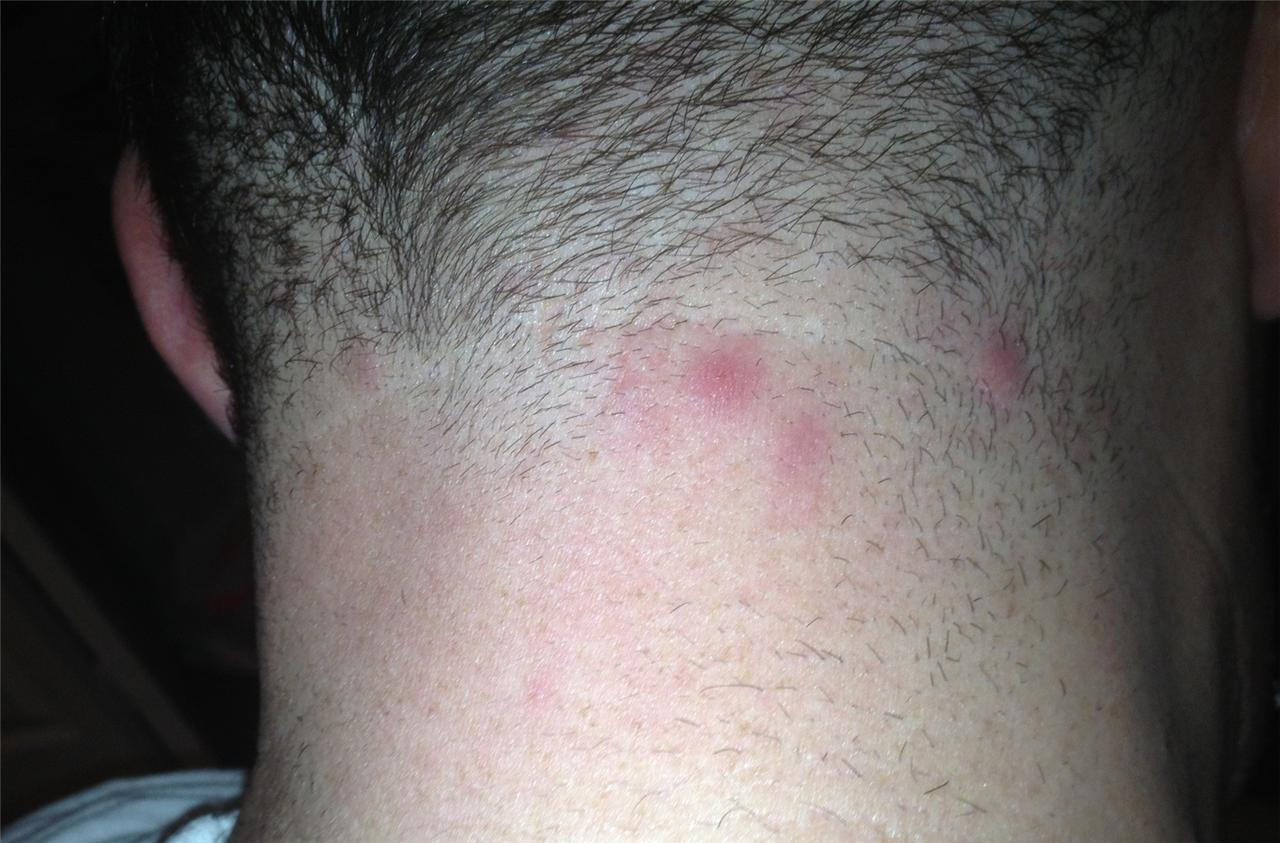 I have two pimples on my neck for months that dont go away ...